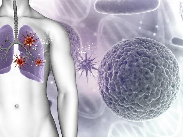 Hati-hati! Ini 4 Benda di Rumah Yang Bisa Jadi Penyebab Kanker